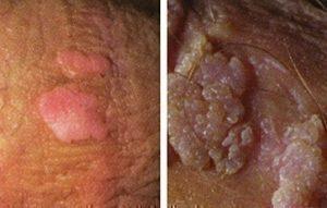 genitális humán papilloma vírus