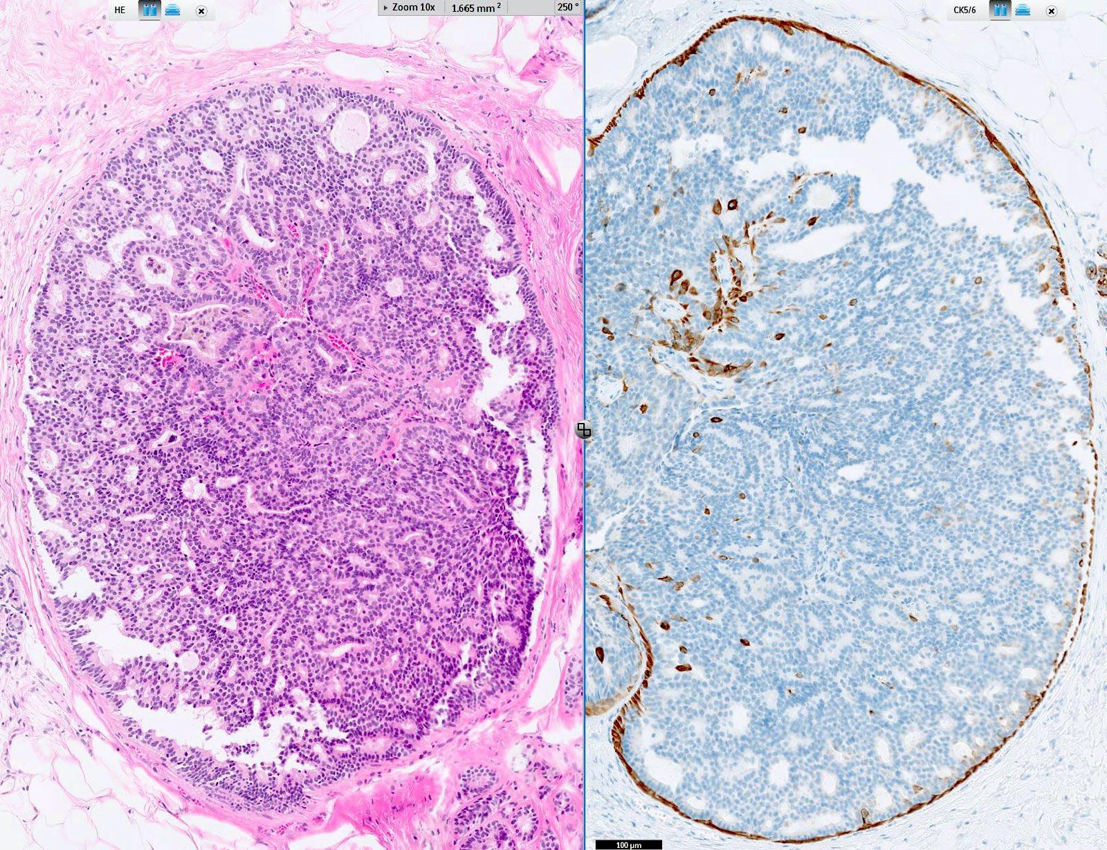Genetikai kapcsolat van a nem invazív mellrák és az invazív betegség kialakulása között
