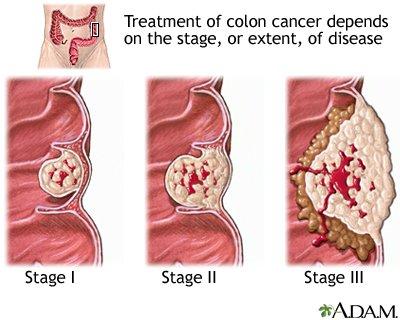 atipikus sejtekkel rendelkező papilloma a condyloma abban nyilvánul meg