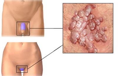 a genitális szemölcsök kezelése a nyálkahártyán