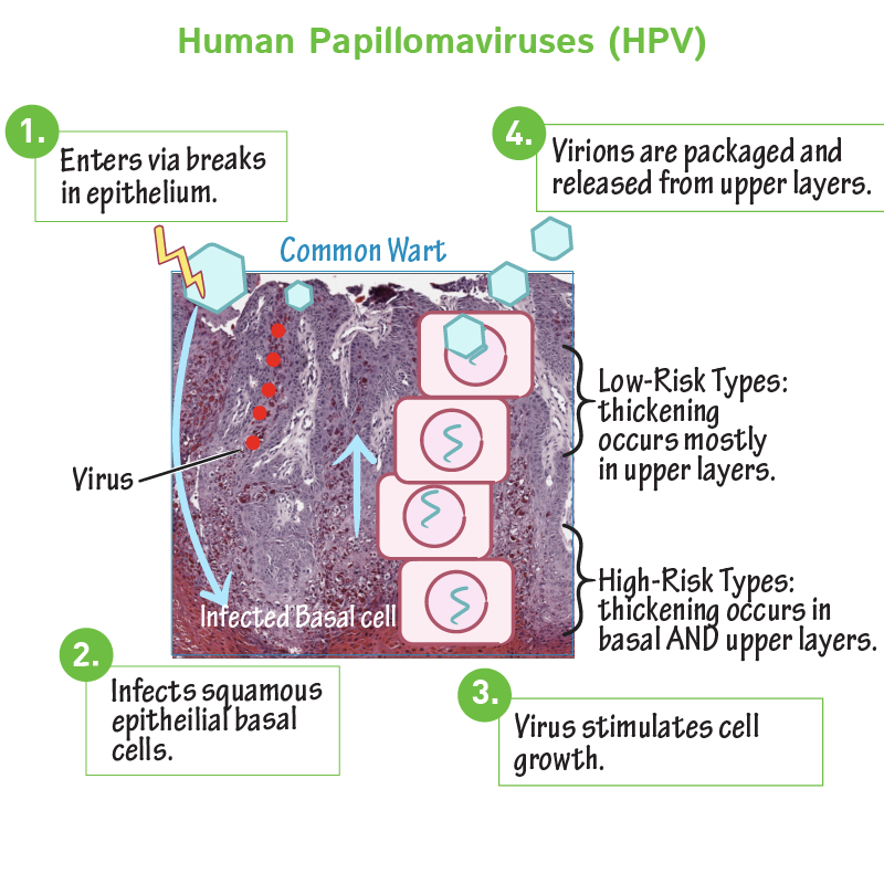 a papillomavírus hpv