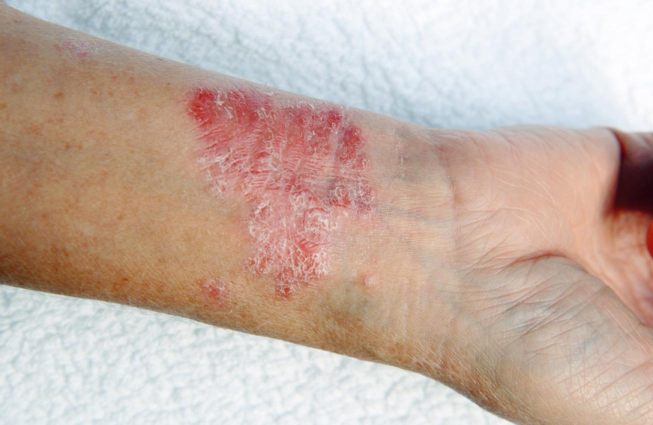 a rák keletkezésének jele a legerősebb paraziták kezelése