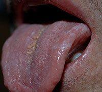 a szájban lévő hpv