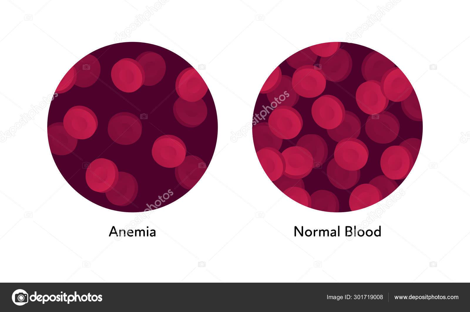 vérszegénység xq da