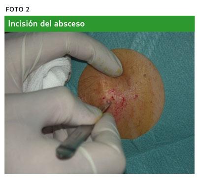 apró szemölcsök a perineumban