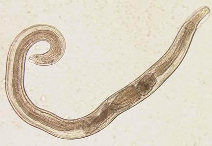 Enterobiasis fertőzés útjai