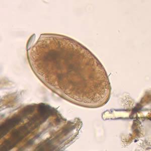 Fascioliasis emberben tünetei és kezelése Fasciolosis (Májmételyféreg fertőzés)