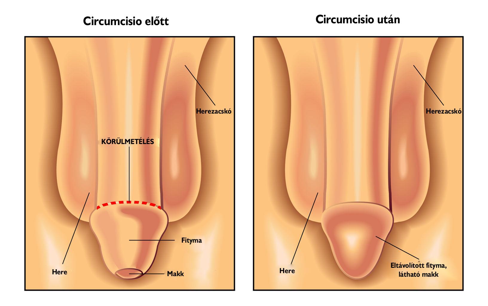 a condyloma nemi szerveinek eltávolítása