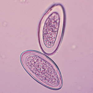 enterobius vermicularis élelmiszer érintett két köztes gazda széles szalaggal
