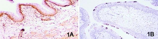 urothelialis papilloma ck20 amely a papilloma vírus