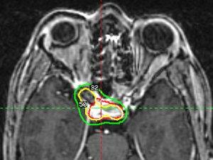 központi idegrendszeri rák