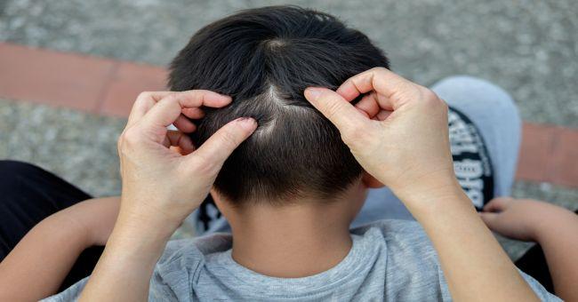 Bélféreg: okok, tünetek, kezelés - HáziPatika - Mely férgek viszketést okoznak a végbélnyílásban