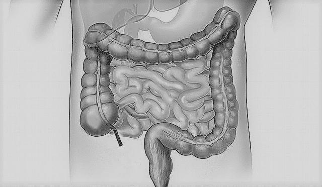parazita tőkehal ovaca