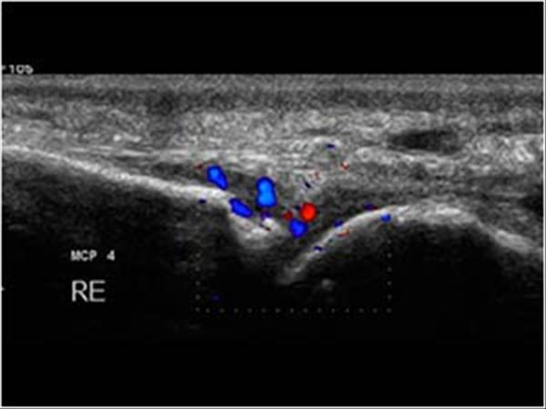 Confluens reticularis papillomatosis Confluent and reticulated papillomatosis - PDF Free Download