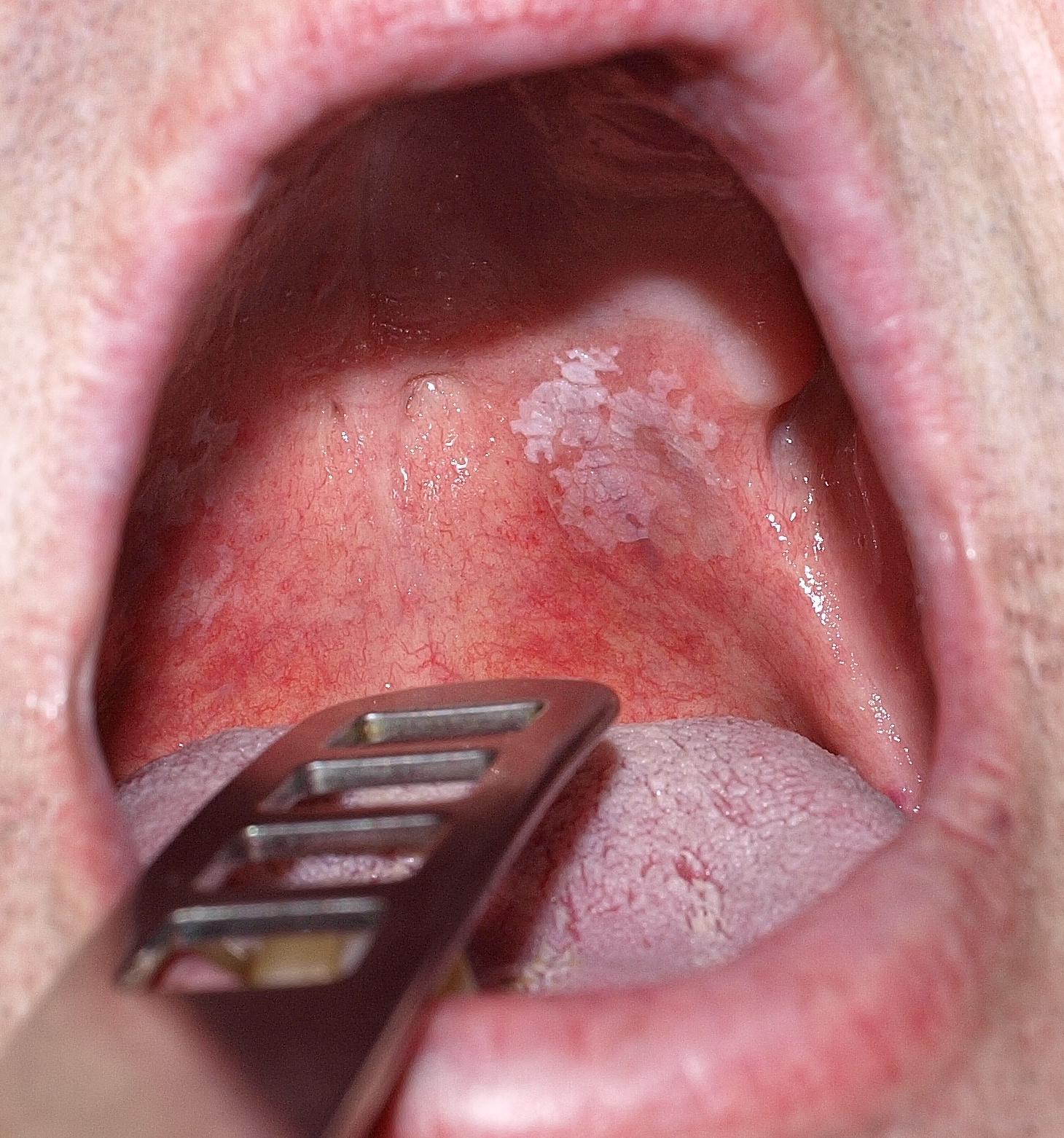 szemölcs a nyelv hegyén