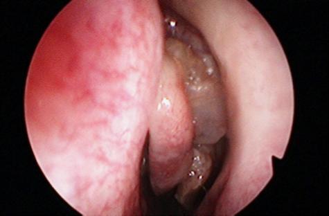 Az ég szerkezete a szájban - Lipoma