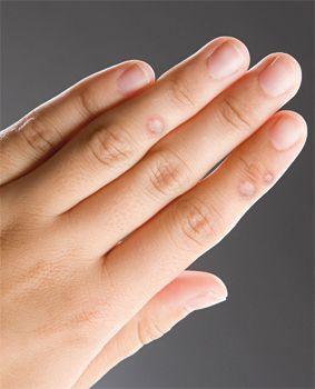 szemölcs vírus ujját