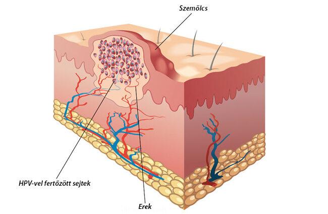 szemölcsök viszketnek a pinwormok diagnózisa