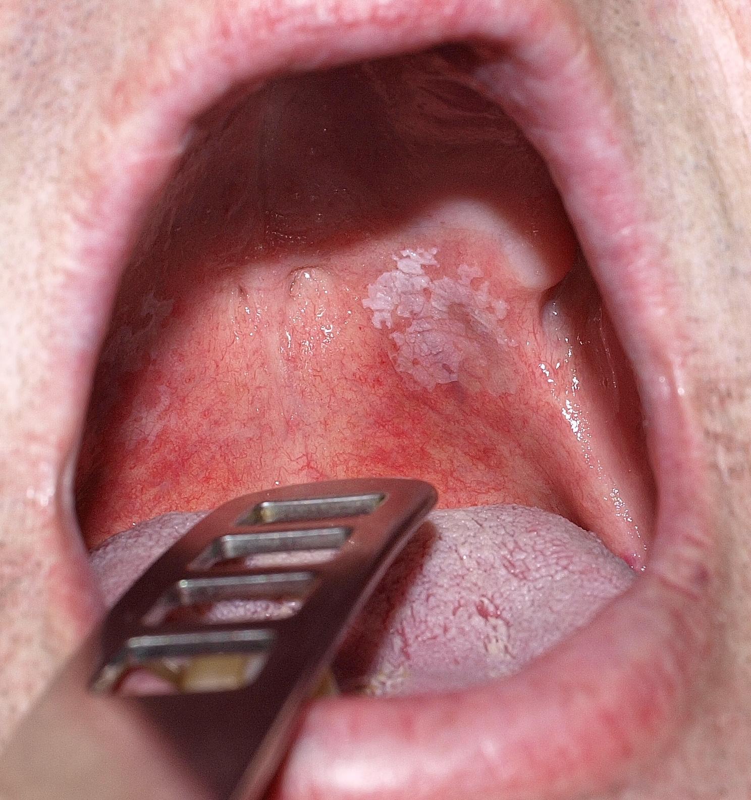 torokrák első tünetei