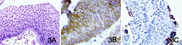 urothelialis papilloma ck20 ahol a nekrózis gyakori