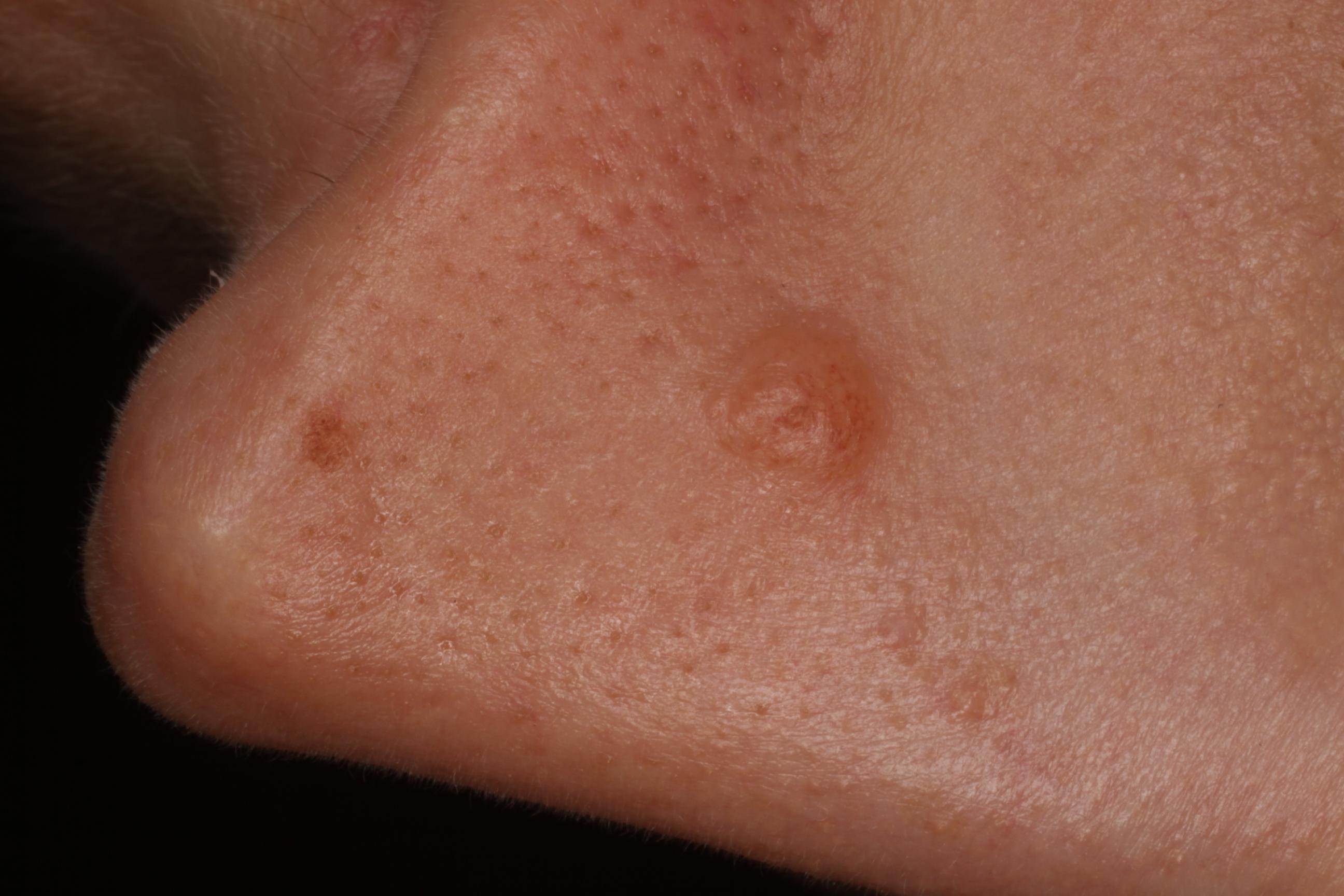 nem pigmentált papilloma mekkora a nemi szemölcsök fertőzésének valószínűsége