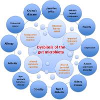 Dysbiosis elleni gyógyszerek és a bél mikroflóra helyreállítása - Belek