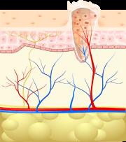 a helminthiasis gyógyítja